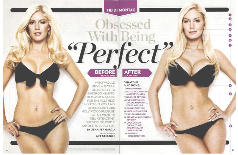 Heidi-Montag-Before-And-After